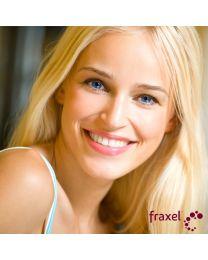 Fraxel DUAL Laser Resurfacing - 4 Options