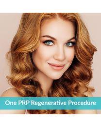 One PRP Regenerative Procedure