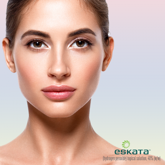 Eskata™ for Seborrheic Keratosis